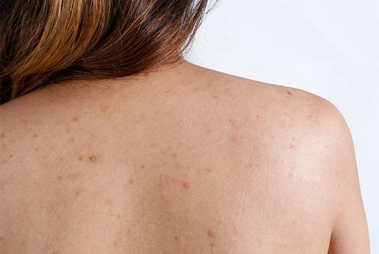 viêm nang lông ở lưng – dấu hiệu và cách chữa trị an toàn, triệt để - trung tâm y tế dự phòng bắc kạn