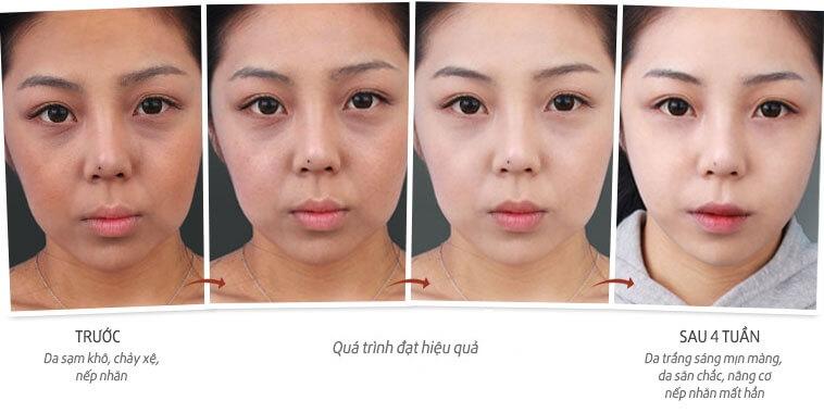 top 4 loại kem dưỡng da từ thiên nhiên cho phụ nữ sau sinh